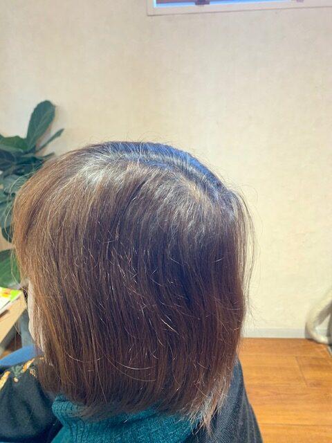 産後の脱毛の予防と対策。