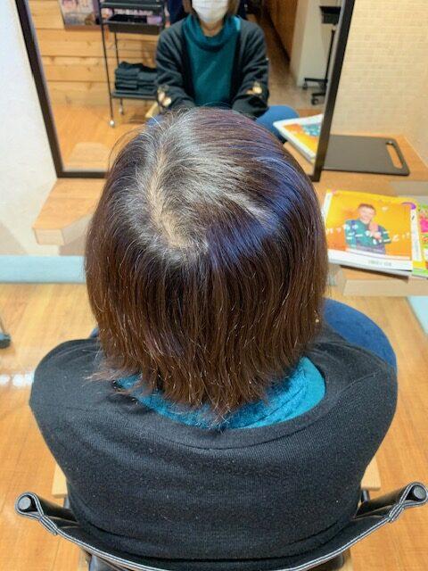 皆が悩むエイジング毛の改善と予防
